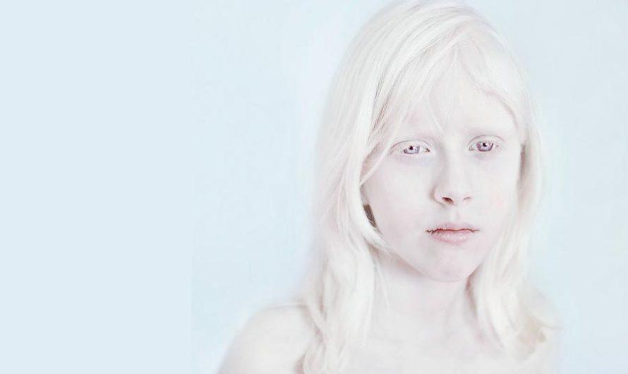 Белее тени бледной : Фотографии альбиносов Sanne De Wilde